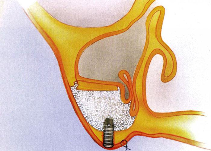 tecnica di rialzo di seno mascellare