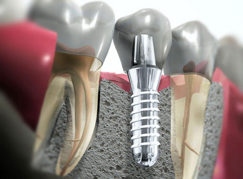 impianto dentale e corona su impianto