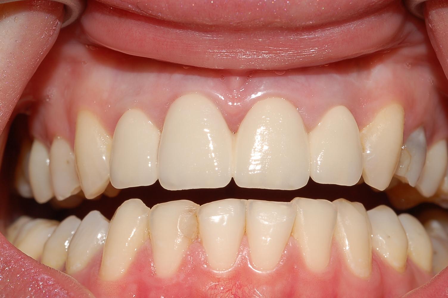 denti in zirconio protesizzati
