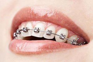 ortodonzia fissa