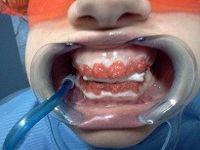 tecnica di sbiancamento dentale