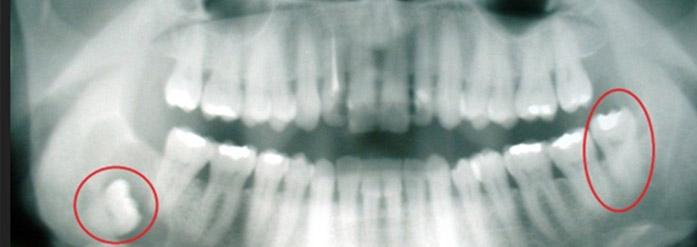 denti in inclusione ossea