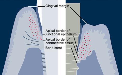 differenza dente naturale impianto