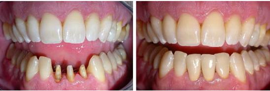immagini prima e dopo protesi fissa