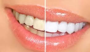 immagine metà denti normali e metà sbiancati