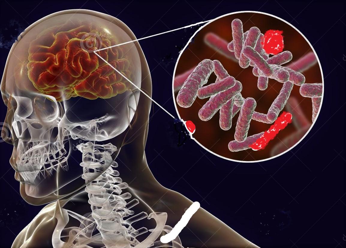 disegno di encefalite batterica