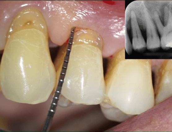 foto di sondaggio parodontale