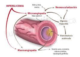 disegno di microangiopatia diabetica