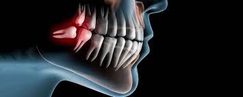 disegno dei denti del giudizio mal posizionati