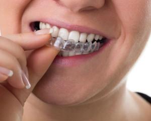 apparecchio ortodontico trasparente