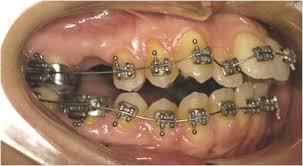 bandaggio e ortodonzia fissa con filo