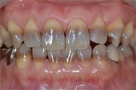 denti tricolori da fermaci